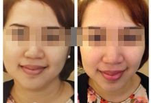 Instant Face Lifting by Nano Hydromist