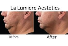 Coolsculpting treatments by la lumiere aesthetics