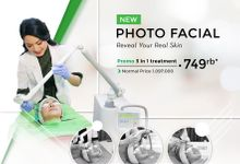 Photo Facial by ZAP Clinic