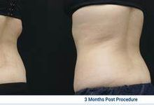 Clatuu Fat Freezing/Cryolipolisis by The Beaute Aesthetic
