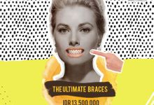 Smile Aligning Pricelist by Smile Concept dental clinic