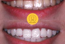 Before After Teeth Whitening by Smile Concept dental clinic