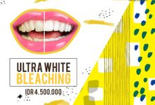 Smile Whitening by Smile Concept dental clinic