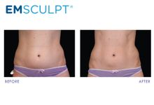 EMSCULPT Muscle toning by la lumiere aesthetics
