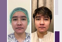 Ultraformer III MMFU Non-Surgical Lifting Treatment by The Beaute Aesthetic