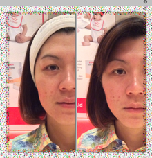 Skin Rejuvenation System by New You