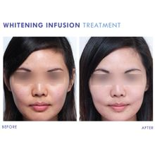 Whitening Infusion by la lumiere aesthetics